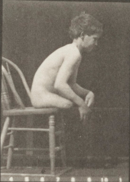 Nude boy with double amputation of thighs moving forward and getting on and off chair