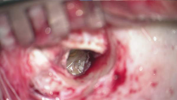 Chronic Ear Surgery Collection of Images