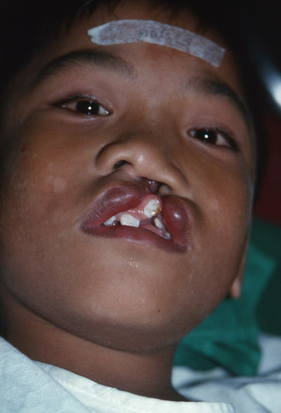 pampanga'94.boy with bad cleft.jpg