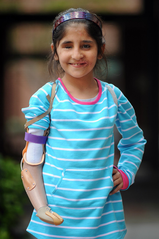 . Shah Bibi, 7, of Afghanistan poses for a photo following her occupational therapy appointment for her new prosthetic arm Wednesday at Shriners Hospital for Children in Los Angeles, CA. Bibi lost most of her right arm and the use of an eye after picking up a hand grenade.  She was brought to Southern California for medical treatment in December by the Children of War Foundation and is set to return to her remote Afghani village next week.(Andy Holzman/Los Angeles Daily News)