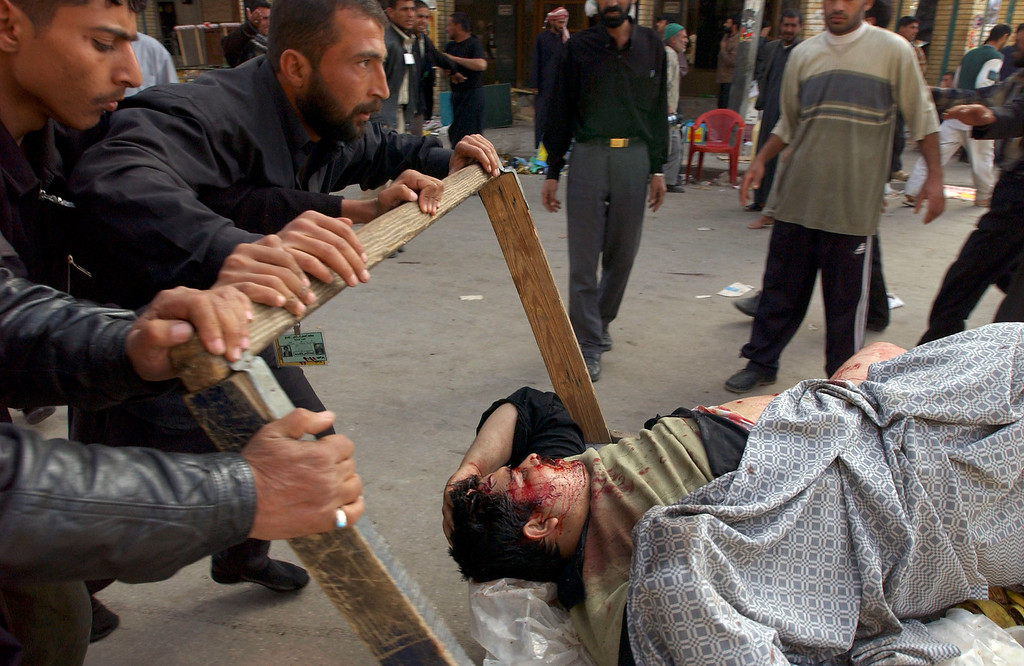 . Victims of an explosion are wheeled away from the scene on March 2, 2004 in Karbala, Iraq. According to reports, as many as 25 people were killed after at least 6 blasts hit the holy city, where many thousands of Muslims were celebrating the festival of Ashura. (Photo by Marco Di Lauro/Getty Images)