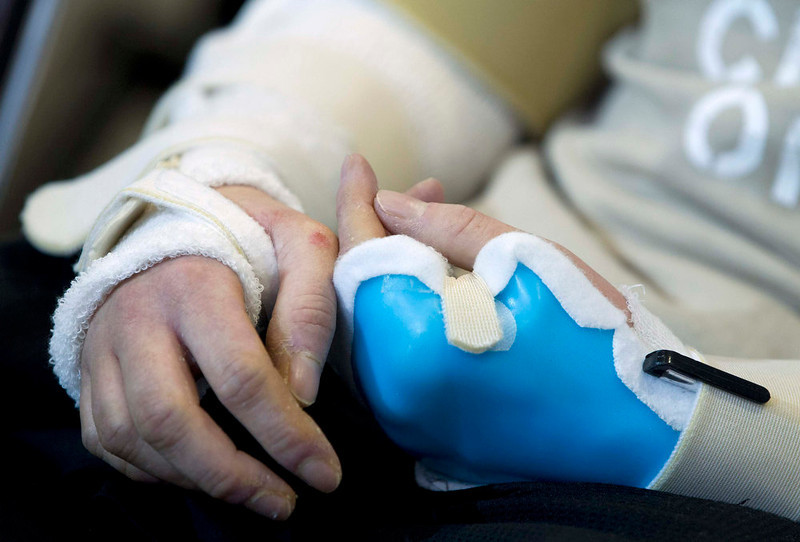 . The hands of U.S. Army Sgt. Brendan Marrocco of Staten Island, New York, who lost his four limbs in a 2009 roadside bomb attack in Iraq, are pictured during a news conference about him receiving double arm transplants, performed by a Hopkins medical team at The John Hopkins Hospital, in Baltimore, Maryland January 29, 2013. REUTERS/Jose Luis Magana