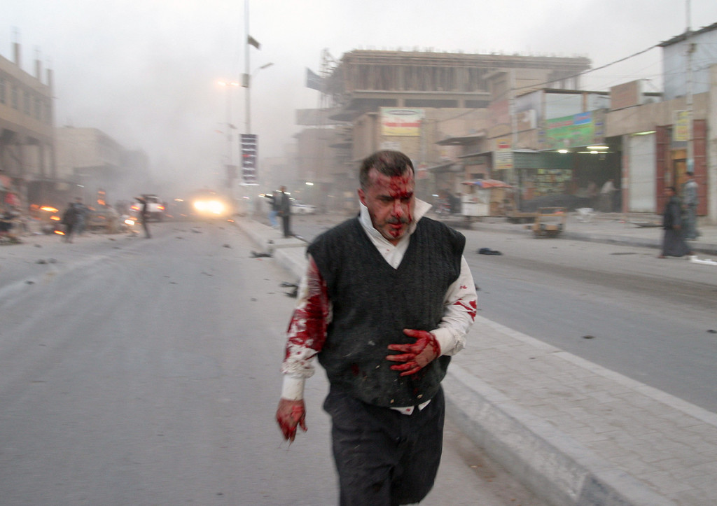 . A wounded man is seen after a bombing in Najaf, 100 miles (160 kilometers) south of Baghdad, Iraq, Thursday, Jan. 14, 2010.  Three explosions, including one caused by a car bomb, rocked the southern city of Najaf at about 5:45 p.m. near a commercial area, police said. An official in the city\'s health department said at least one person was killed and 50 were wounded. (AP Photo/Alaa al-Marjani)