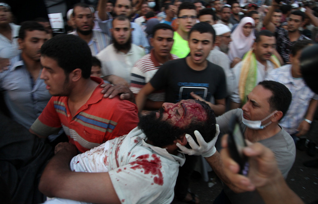 . Supporters of Egypt\'s ousted President Mohammed Morsi carry an injured man to a field hospital following clashes with security forces at Nasr City, where pro-Morsi protesters have held a weekslong sit-in, in Cairo, Egypt, Saturday, July 27, 2013. Police fired tear gas to disperse hundreds of Morsi supporters, setting off clashes that lasted for hours and left tens of people dead. (AP Photo/Khalil Hamra)