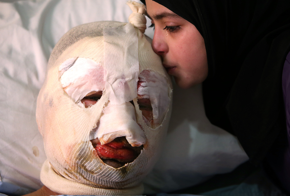 . Fatima, 13, weeps as she kisses her injured father, Ahmad al-Messmar, 40, who was wounded when a deadly car bomb blew up Saturday evening near a gas station, in the predominately Shiite town of Hermel, about 10 miles (16 kilometers) from the Syrian border in northeast Lebanon, Sunday, Feb. 2, 2014. (AP Photo/Hussein Malla)