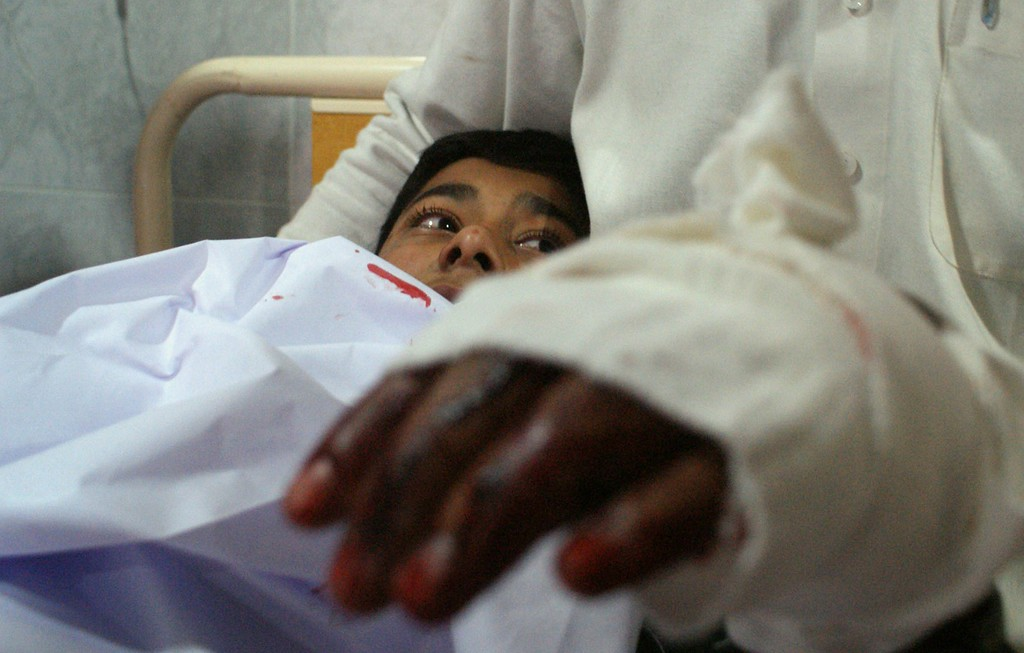 . An injured Pakistani student lies in bed at a hospital following an attack by Taliban gunmen on a school in Peshawar on December 16, 2014. Taliban insurgents killed at least 130 people, most of them children, after storming an army-run school in Pakistan December 16 in one of the country\'s bloodiest attacks in recent years. AFP PHOTO/ A Majeed/AFP/Getty Images