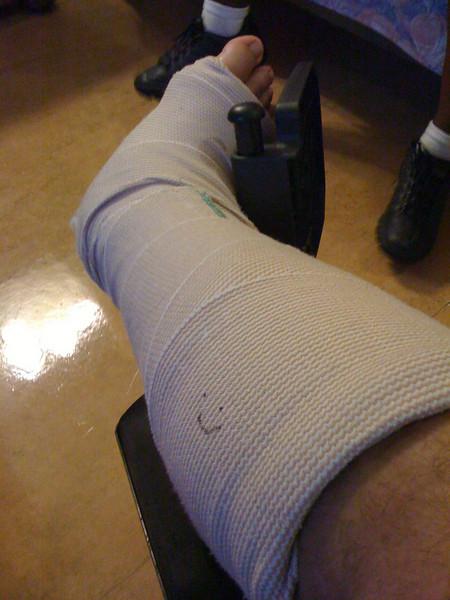 2009 07 09 - Rehab - Bad Leg