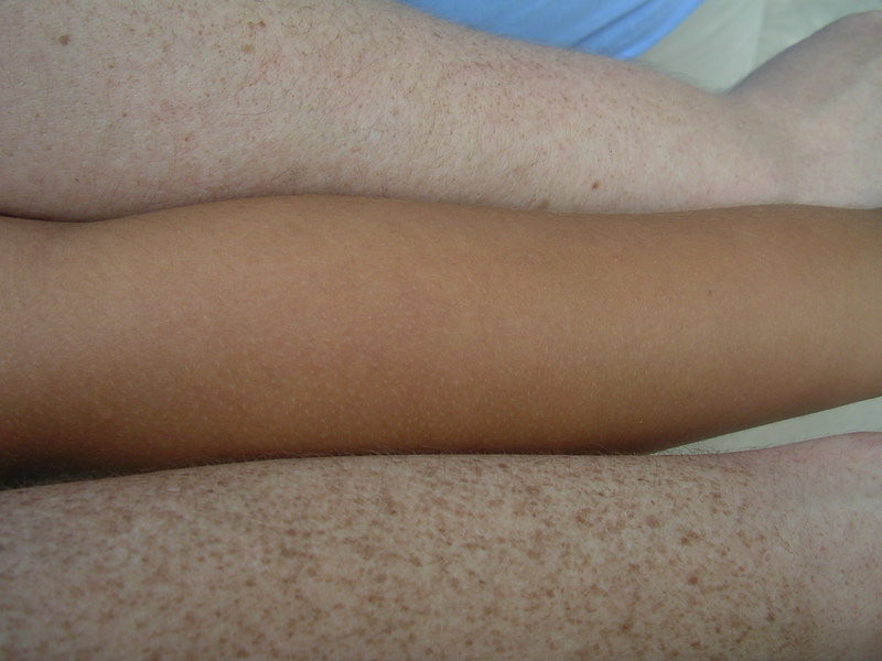 Whose arm is whose?