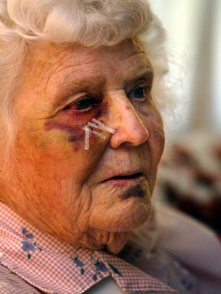 Bruised and with a broken shoulder, 91-yr old Eula Aichholz, talks about her experience at her home Tuesday when she was attacked Friday morning by a pitbull while on a morning walk in her neighborhood. - Halley photo 7/5/05
