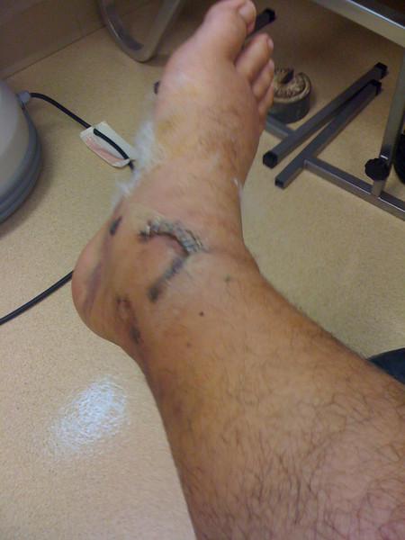 2009 07 13 - Inner ankle staples