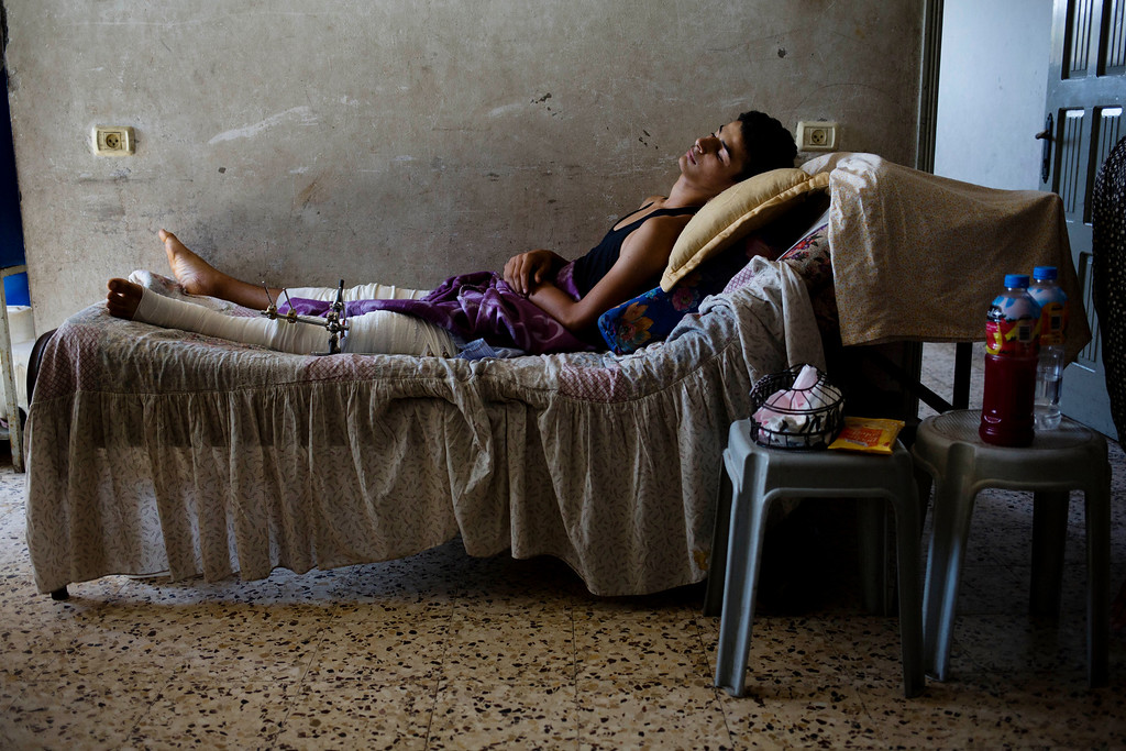 . This photo made on Wednesday, Aug 6, 2014 in Gaza City, shows Bahaa Eilewah, 16, a student wounded in both legs in the Shijaiyah neighborhood who tried to help people wounded in a previous shelling on July 30, 2014. More than 9,000 Palestinians, the majority of them civilians and nearly a third among them children, have been wounded in the month long Gaza war. (AP Photo/Dusan Vranic)