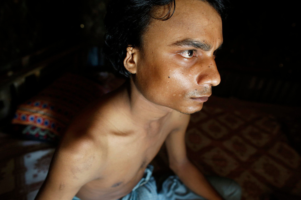 . Noor Alam, 23, a wounded worker, sits in his home near a ship-breaking yard in Chittagong, Bangladesh July 17, 2013. Bangladesh is dependent on ship-breaking for its domestic steel requirements. According to a report by the Bangladesh Institute of Labour Studies, around 30,000 workers are employed in the ship-breaking industry in Chittagong, a highly polluted coastal belt of around 20 km (12.4 miles), and environmental organizations have said that the number of accidents and casualties at the yard is believed to be the highest in the region. International attention has been focused on workers\' safety in Bangladesh since the disaster at Rana Plaza, a garment factory complex which collapsed in April, killing 1,132 workers. Picture taken July 17, 2013. REUTERS/Andrew Biraj