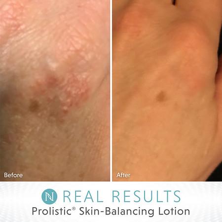 Prolistic® Skin-Balancing Lotion