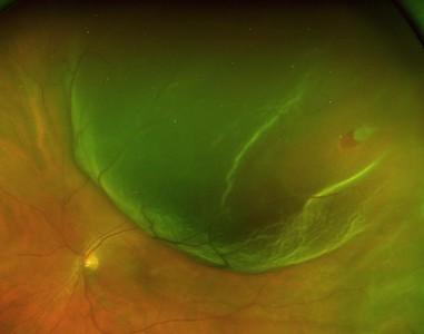 Basic eye photos