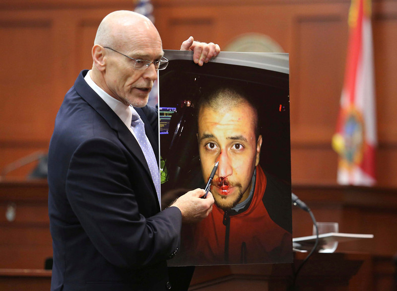 . Don West, a defense attorney for George Zimmerman, displays a photo of his client, from the night of the shooting of Trayvon Martin, to  the jury during opening arguments in Seminole circuit court on the opening day of George Zimmerman trial in Sanford, Florida, June 24, 2013. Zimmerman is accused in the fatal shooting of Trayvon Martin.   REUTERS/Joe Burbank/Pool