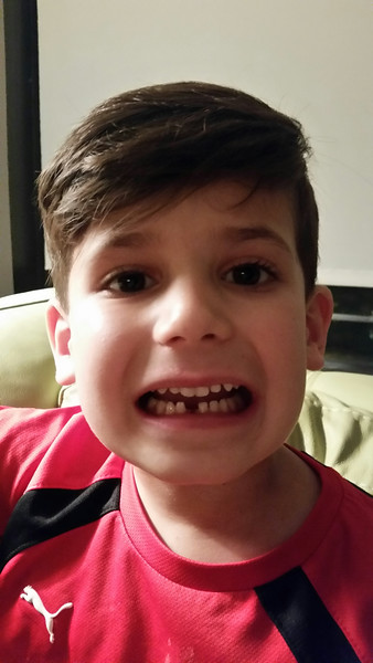 Marco - First lost tooth