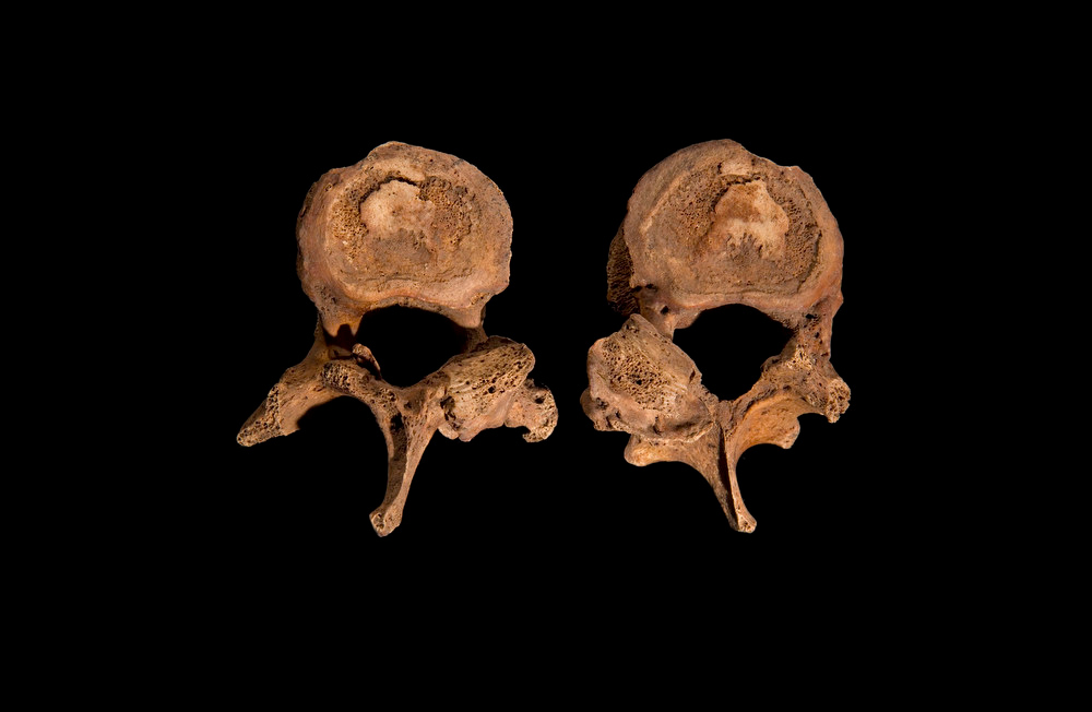 . Two vertebrae from the spine of Richard III are seen in this photograph provided by the University of Leicester and received in London on February 4, 2013. The vertebrae show some abnormal features; the spinous processes of the vertebrae (bottom), which should be straight, are twisted to one side and there are signs of osteoarthritis in the joints between the vertebrae. A skeleton with a cleaved skull and a curved spine entombed under a car park is that of Richard III, scientific tests confirmed, solving a 500-year-old mystery about the final resting place of the last English king to die in battle.  REUTERS/University of Leicester/Handout