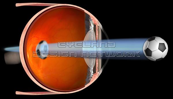 Refractive Errors - Presbyopia