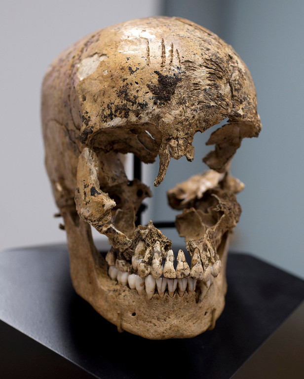 """. Strike marks are seen on the skull of  \""""Jane of Jamestown\"""" during a news conference at the Smithsonian\'s National Museum of Natural History in Washington, Wednesday, May 1, 2013.  Scientists announced during the news conference that they have found the first solid archaeological evidence that some of the earliest American colonists at Jamestown, Va., survived harsh conditions by turning to cannibalism presenting the discovery of the bones of a 14-year-old girl, \""""Jane\"""" that show clear signs that she was cannibalized. (AP Photo/Carolyn Kaster)"""