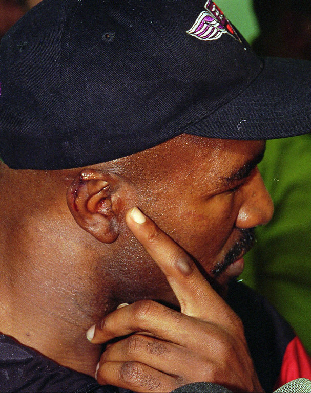 . WBA Heavyweight champion Evander Holyfield points to his ear after it was sewn back together at Valley Hospital in Las Vegas, June 28, 1997. While defending his WBA title against Mike Tyson, Tyson bit a chunk out of his ear in the third round and was disqualified. (AP Photo/Jack Dempsey)