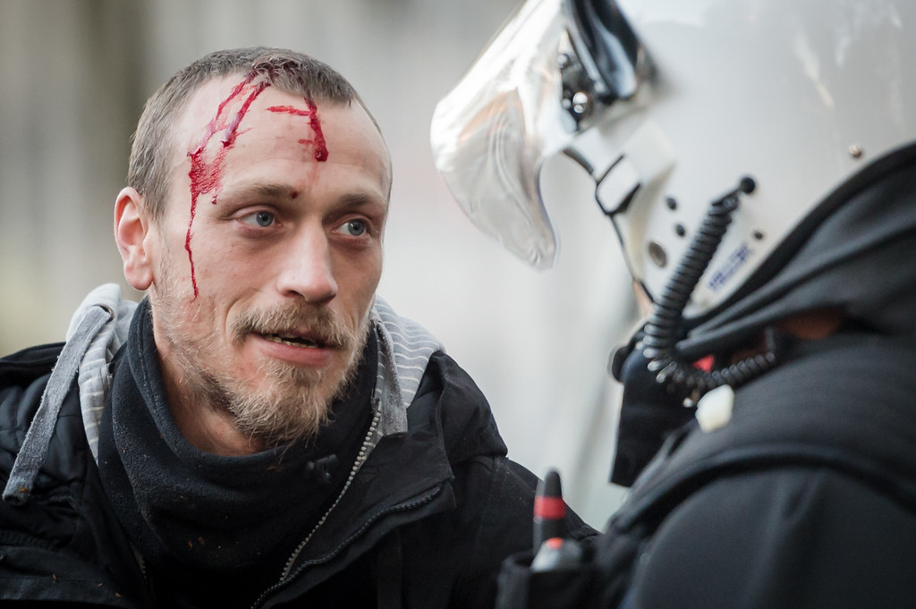. A bleeding protestor talks to a policeman during a national trade union demonstration in Brussels, Thursday Nov. 6, 2014. (AP Photo/Geert Vanden Wijngaert)