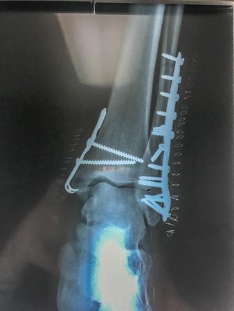 Broken Ankle Pics  --  4-16-18