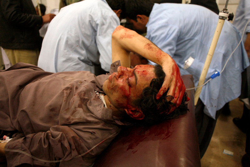 . An injured man lies in a hospital after the second bomb blast in Quetta January 10, 2013. Twin explosions killed at least 56 people in the Pakistani city of Quetta on Thursday evening, a police official said, hours after a bombing in Quetta\'s market killed 11.     REUTERS/Naseer Ahmed
