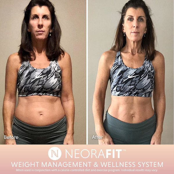 NeoraFit Real Results8.jpg