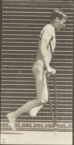 Nude man with single amputation of leg, hopping with crutches
