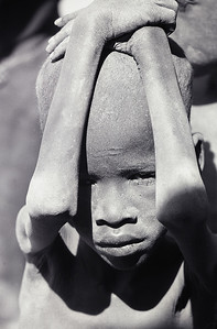 A young severely malnourished boy from the nomadic Turkana tribe in northern Kenya.   Photo by Jim Whitmer