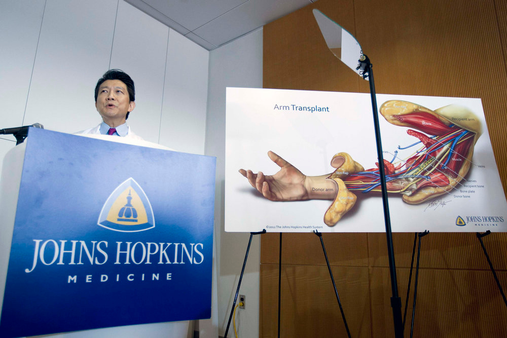 . Johns Hopkins School of Medicine\'s Department of Plastic and Reconstructive Surgery Director W.P. Andrew Lee speaks during a news conference about the double arm transplants performed on U.S. Army Sgt. Brendan Marrocco of Staten Island, New York, who lost his four limbs in a 2009 roadside bomb attack in Iraq, at The Johns Hopkins Hospital in Baltimore, Maryland January 29, 2013. REUTERS/Jose Luis Magana