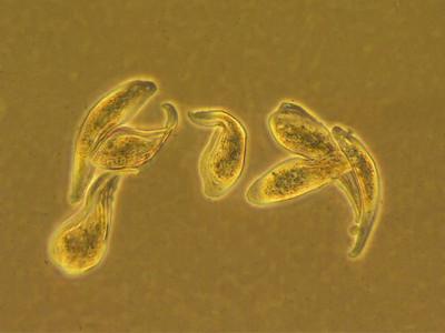 Ciliate reproduction