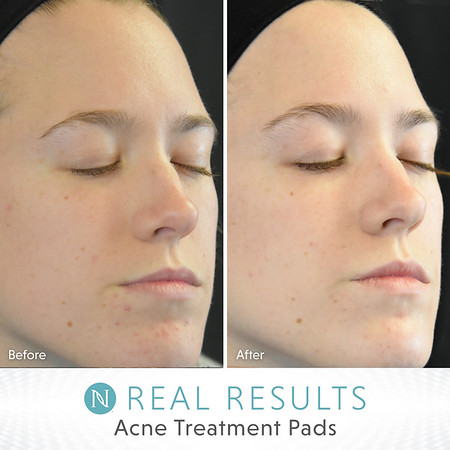 Complexion Clearing Salicylic Acid Acne Treatment Pads